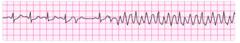 Course Ventricular Fibrillation