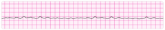 Fine Ventricular Fibrillation