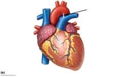 ligamentum arteriosum