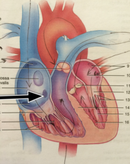opening of coronary sinus